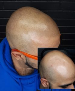 before and after SMP, natural hairline