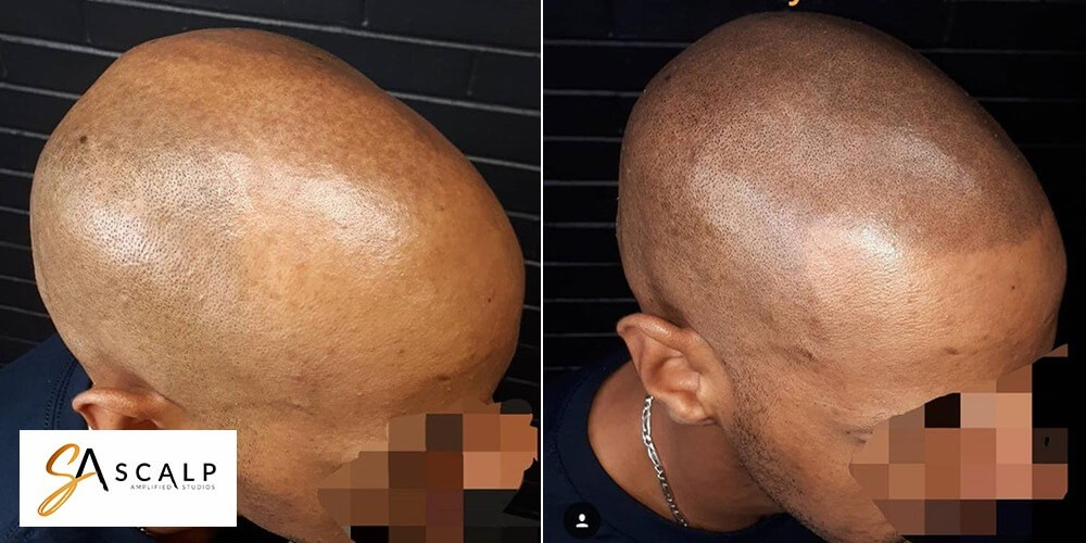 Sort by: relevance - date. Hairline Time is hiring a Scalp micro pigmentation technicians for our Culver City location.
