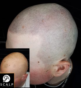Client with Alopecia after SMP