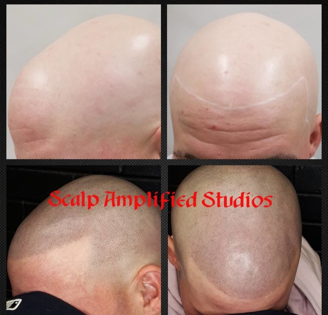 Before and After SMP for Alopecia Universalis client