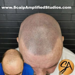Scalp Micropigmentation Before and After - Scalp Amplified Studios