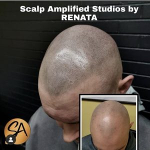 The best scalp micropigmentation results in the Greater Toronto Area