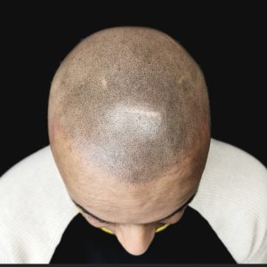 Scalp Micropigmentation For Hair Loss in Brampton and Mississauga
