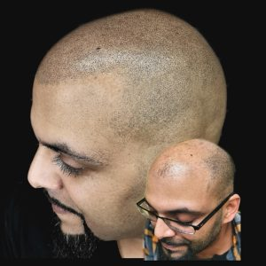 Scalp Micropigmentation For Arab Men in Brampton and Mississauga